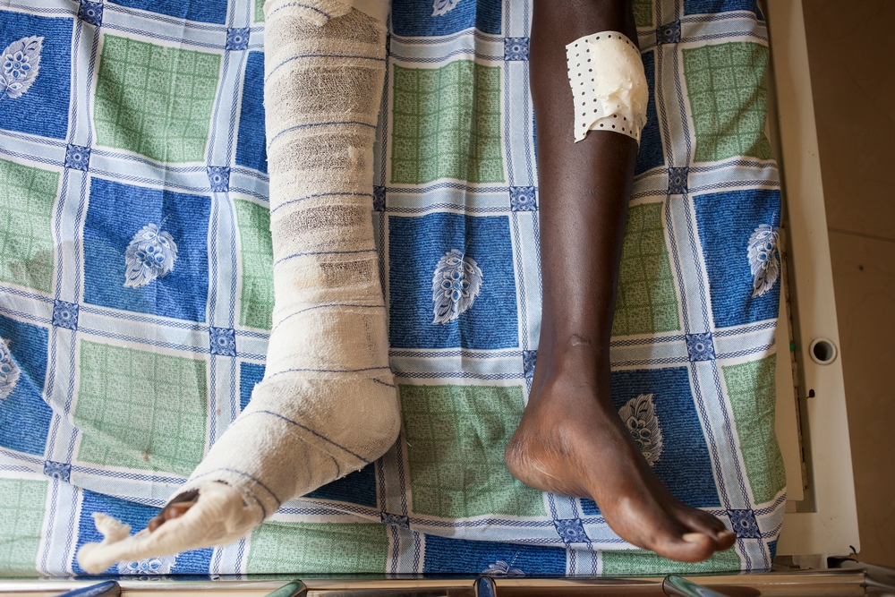 Læger uden Grænser behandler sårede under konflikten i Burundi.